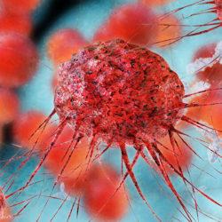 Ενδιαφέρουσα διημερίδα για τις νεοπλασματικές ασθένειες στα Χανιά