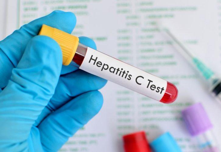 Ειδοποίηση για να εξεταστούν για ηπατίτιδα C, όλοι όσοι έχουν γεννηθεί μεταξύ 1945 – 1980