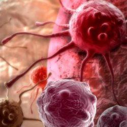 Τεστ «ασπίδα» για τον καρκίνο του μαστού από κρητικούς γιατρούς
