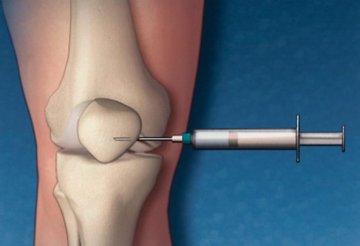 Οι ενέσεις κορτιζόνης σε γόνατο και ισχίο μπορεί να επιταχύνουν την αρθρίτιδα