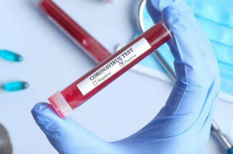 Για μήνες μετά την αρχική ασθένεια, διαρκούν τα συμπτώματα του κορωνοϊού