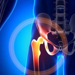 Ισχίο: Ποιες βιταμίνες αυξάνουν τον κίνδυνο κατάγματος;