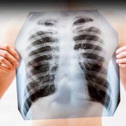 Χρόνια Αποφρακτική Πνευμονοπάθεια: O ρόλος της σπιρομέτρησης στην πρώιμη διάγνωσή της