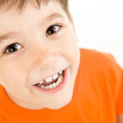 Πως επηρεάζουν τα παιδιά τα ορθοδοντικά προβλήματα
