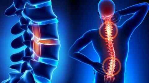 Γυναίκα και σπονδυλική στήλη: 15 τρόποι πρόληψης του πόνου