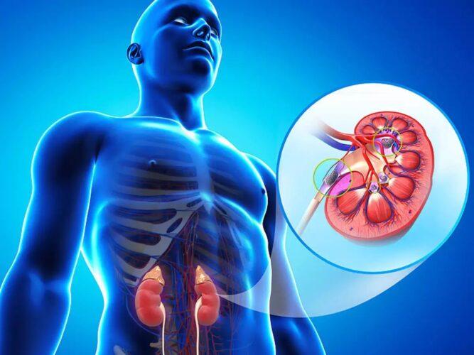 Νεφρολιθίαση: Με ποια ενδοκρινική διαταραχή σχετίζεται