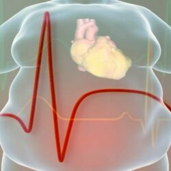 Παχυσαρκία: Τι προσφέρει σήμερα η ρομποτική χειρουργική;