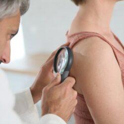Ετήσιο δερματολογικό check-up: Πότε είναι αναγκαίο;