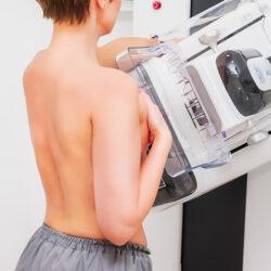 Πόσο επικίνδυνη είναι η ακτινοβολία από τη μαστογραφία;