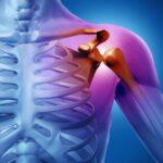 Ρήξη τένοντα ώμου: Πως να απαλλαγείτε οριστικά από τον πόνο