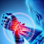 Η συχνή αιτία πόνου στον καρπό που χρειάζεται να ελεγχθεί από ειδικό ορθοπεδικό
