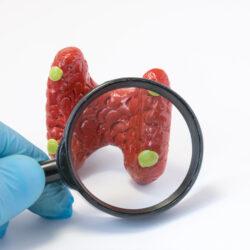 Παθήσεις των παραθυρεοειδών αδένων και χειρουργική αντιμετώπιση