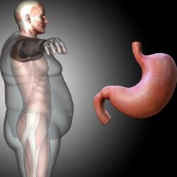 Πώς σχετίζεται η παχυσαρκία με τις παθήσεις του πεπτικού συστήματος