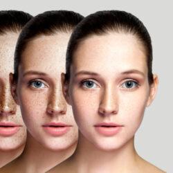 Δέρμα: Θεραπείες που «σβήνουν» τα σημάδια του καλοκαιριού