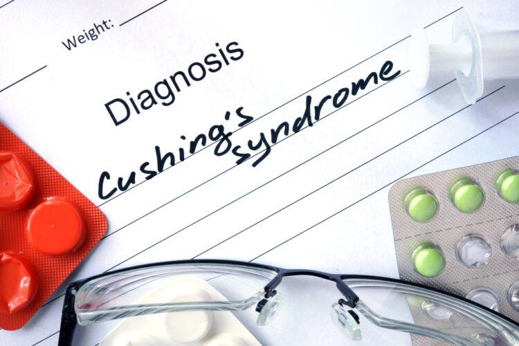 Σύνδρομο Cushing: Ποιοι παράγοντες βοηθούν στη διαχείρισή του;